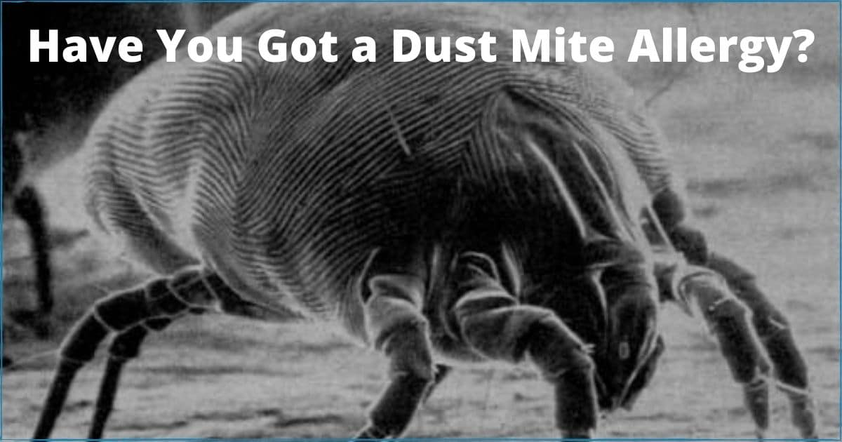 Have You Got a Dust Mite Allergy?